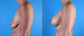 breast-reduction-breast-lift-010b-swan-center