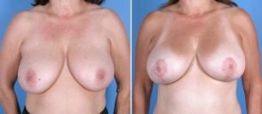 breast-reduction-breast-lift-014a-swan-center