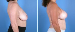 breast-reduction-breast-lift-014b-swan-center
