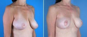 breast-lift-016b-swan-center