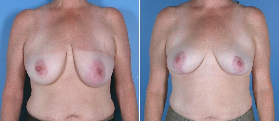 breast-reduction-breast-lift-017a-swan-center