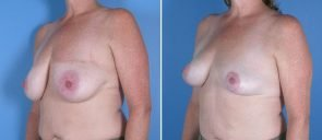 breast-reduction-breast-lift-017b-swan-center