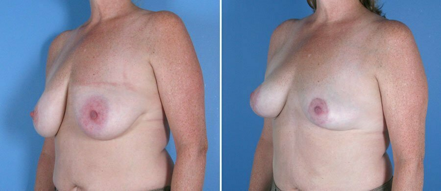 Breast Reduction & Lift