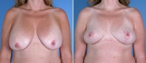 breast-reduction-breast-lift-018a-swan-center