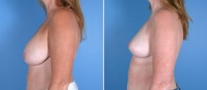 breast-reduction-breast-lift-018b-swan-center