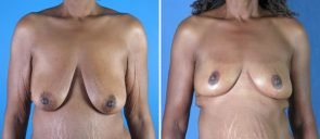 breast-reduction-breast-lift-019a-swan-center