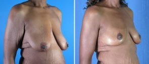 breast-reduction-breast-lift-019b-swan-center