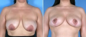breast-reduction-breast-lift-021a-swan-center