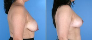 breast-reduction-breast-lift-021b-swan-center