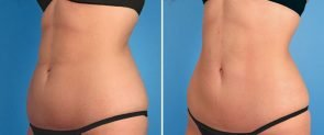 coolsculpting-02b-swan-center