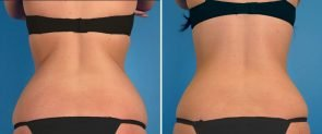 coolsculpting-02d-swan-center