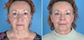 Facelift & Chin/Neck Lipo