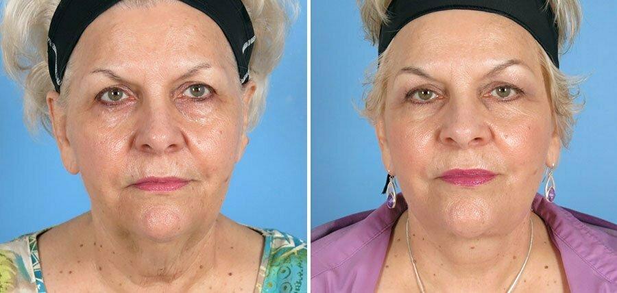 Facelift & Eyelid Lift