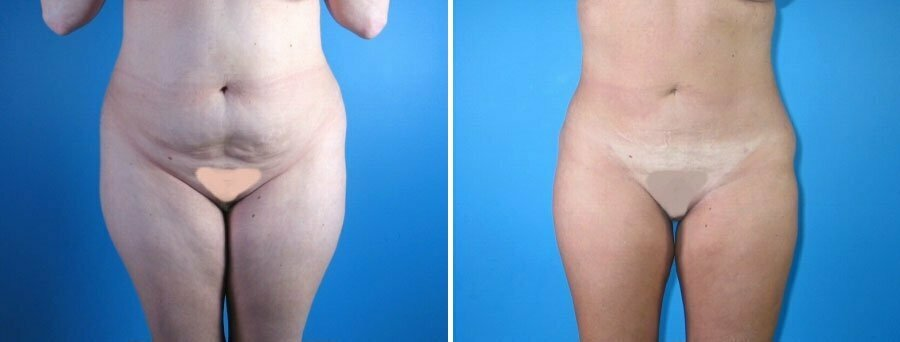 liposuction-001a-swan-center
