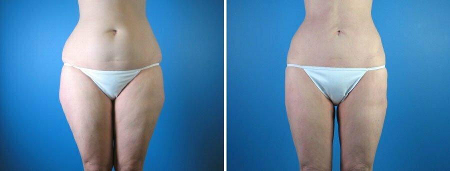 liposuction-003a-swan-center