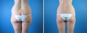 liposuction-003b-swan-center