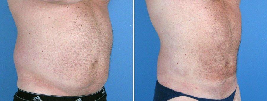 liposuction-004a-swan-center
