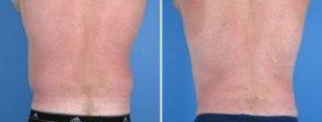 liposuction-004b-swan-center
