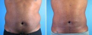 liposuction-006a-swan-center