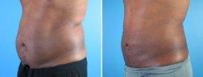 liposuction-006b-swan-center