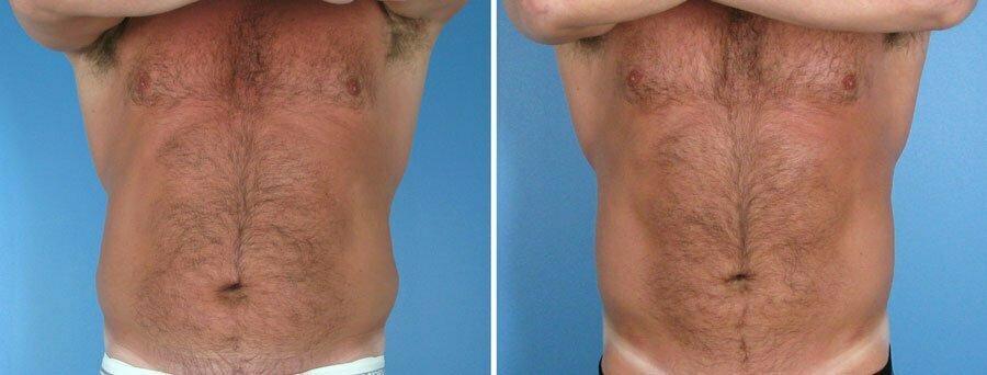 liposuction-007a-swan-center