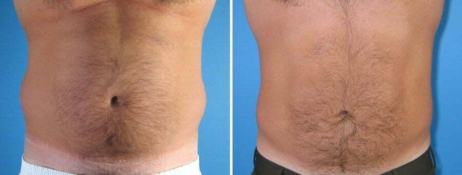 liposuction-009a-swan-center