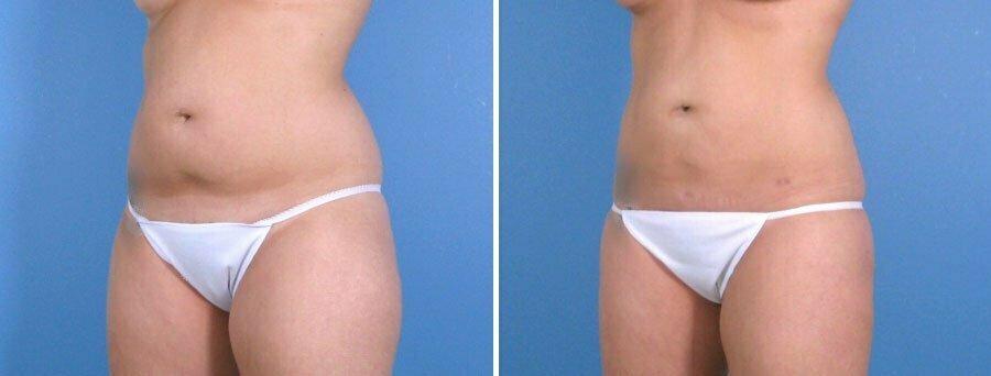 liposuction-010a-swan-center