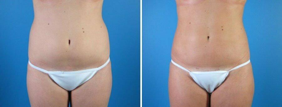 liposuction-011a-swan-center