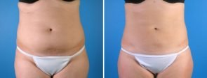 liposuction-016a-swan-center