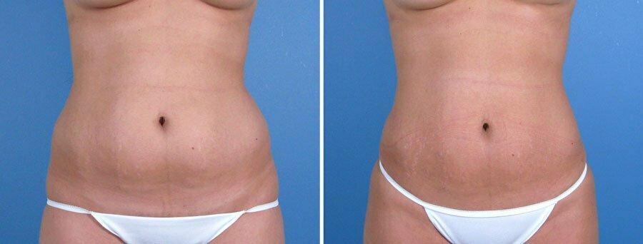 liposuction-022a-swan-center