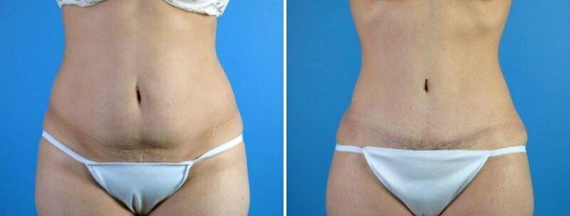 Tummy Tuck & Liposuction
