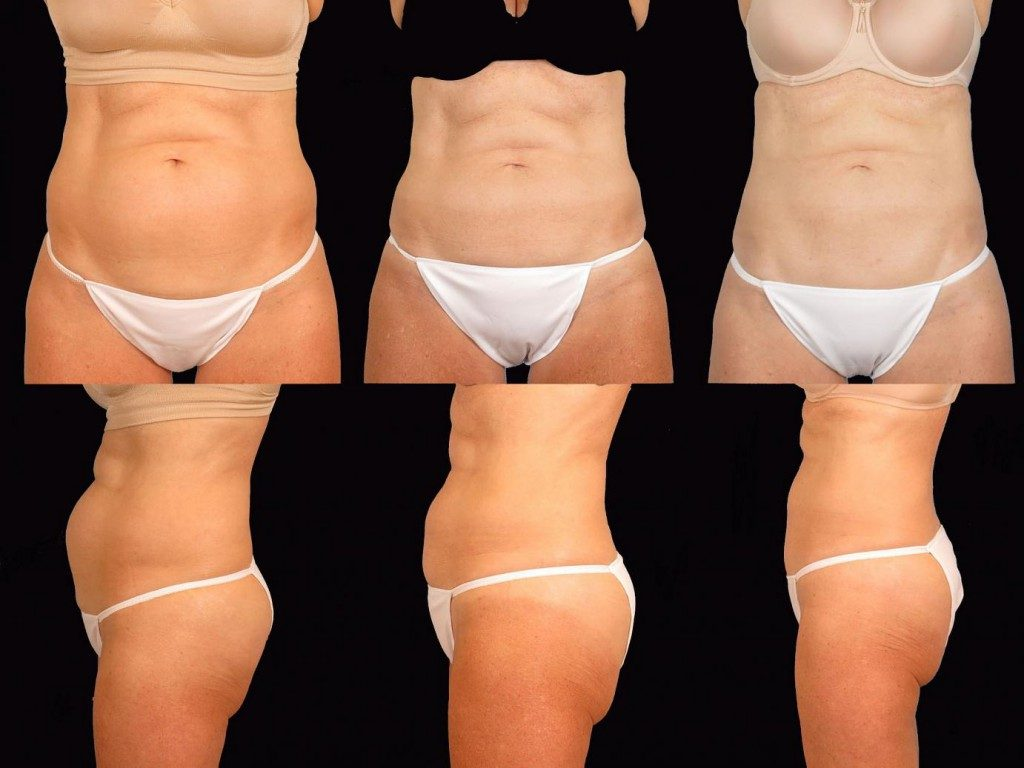 BEFORE, 8 WEEKS AFTER, AND 12 WEEKS AFTER COOLSCULPTING