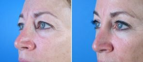 eyelid-001b-upper-bleph-swan-center
