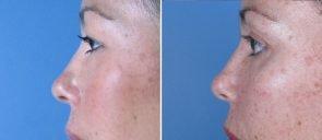 eyelid-002c-lower-bleph-swan-center