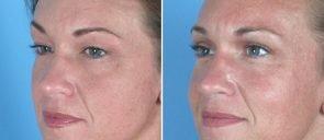 eyelid-browlift-004b-upper-swan-center