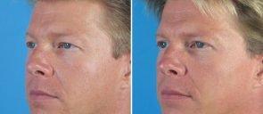 eyelid-male-005b-swan-center