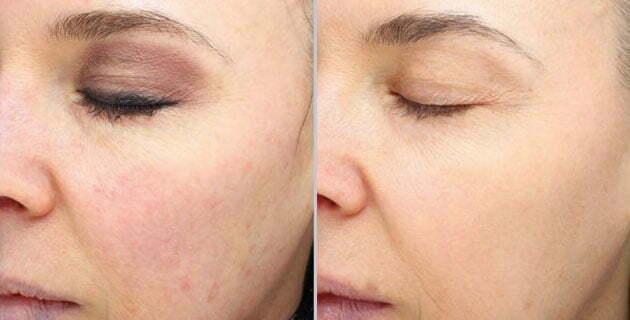 HALO, Beautiful! Check Out Your Latest Option for Laser Resurfacing