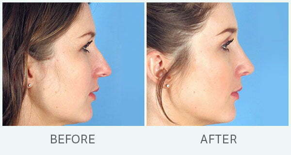 Nose Jobs 7 Questions You Have Swan Center For Plastic Surgery