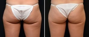 coolsculpting-01d-outer-thigh-swan-center