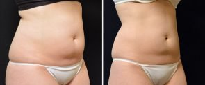 coolsculpting-05b-swan-center