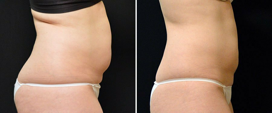 coolsculpting-05c-swan-center