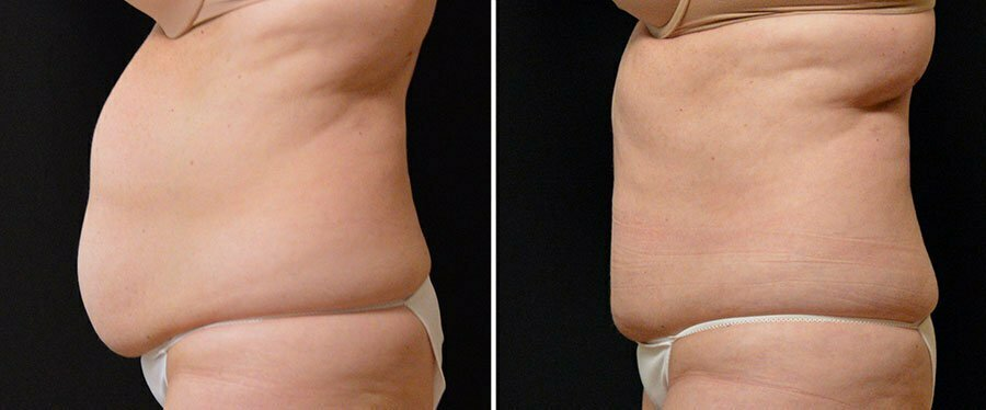 coolsculpting-17c-swan-center