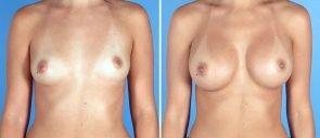 breast-augmentation-12496a-swan-center