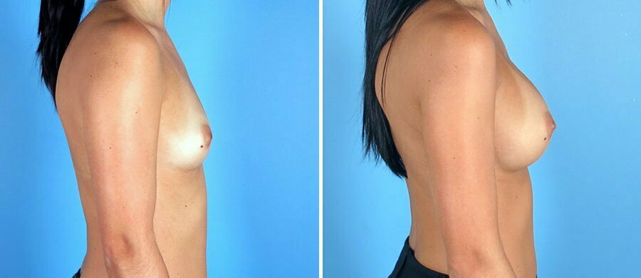 breast-augmentation-12496c-swan-center