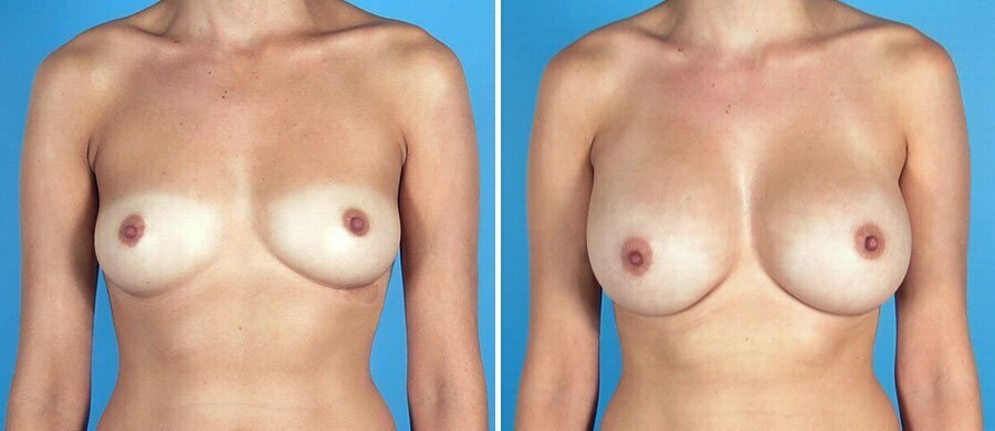 breast-augmentation-12498a-swan-center