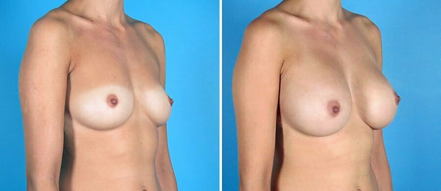 breast-augmentation-12498b-swan-center