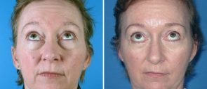 eyelid-lift-12397a-swan-center