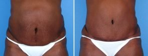tummy-tuck-liposuction-12407a-swan-center