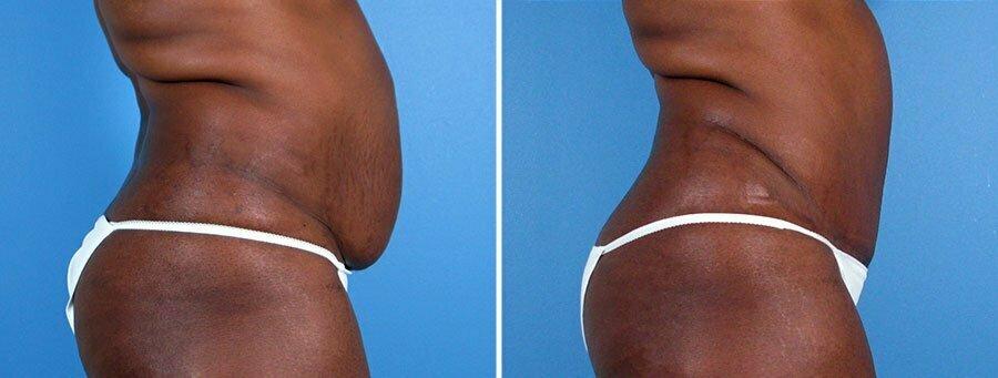 tummy-tuck-liposuction-12407c-swan-center