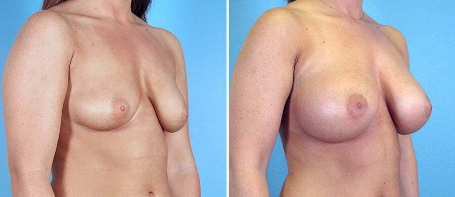 Mistake can Roswell breast augmentation think